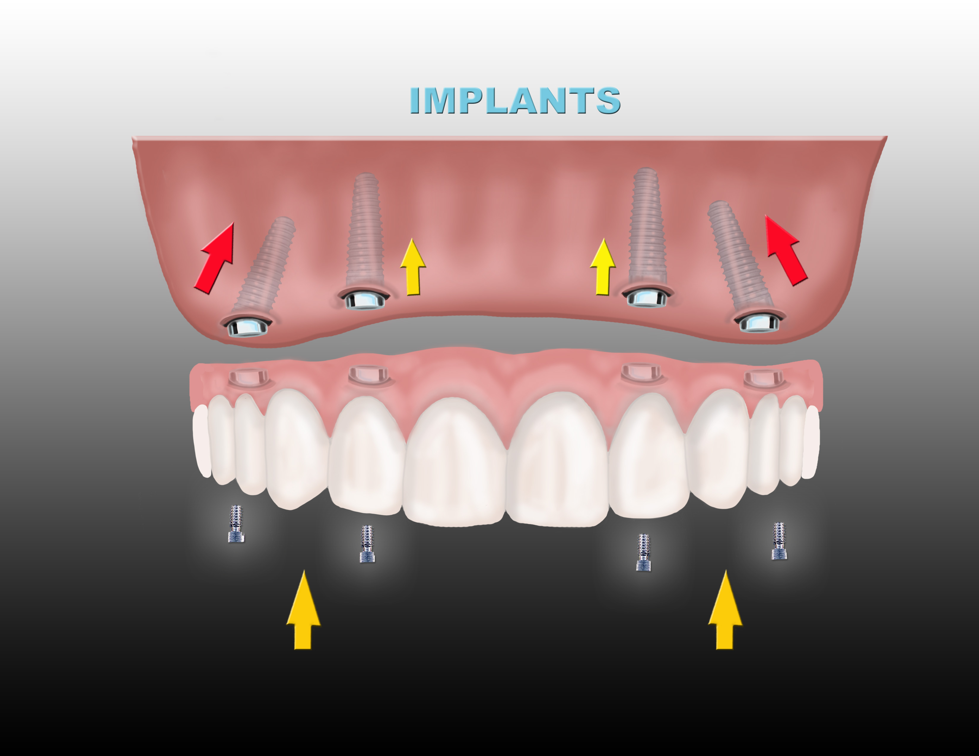 All On Four Dental Implant Dentures