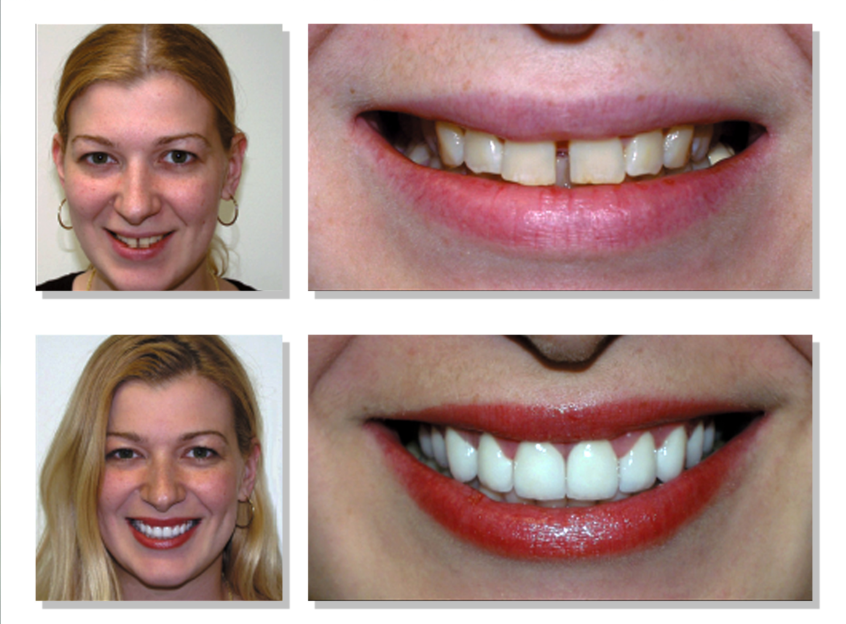 All-On-4 Dental Implants Before and After