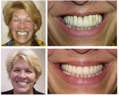 Implant Dentist in NJ   Before & After Patient Photos